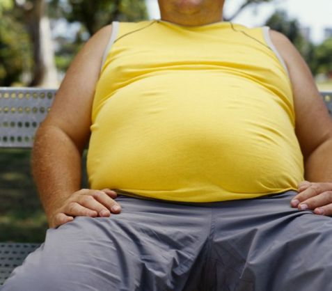 Urinary incontinence due to obesity