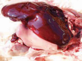 What symptoms and signs presented at fatty liver?