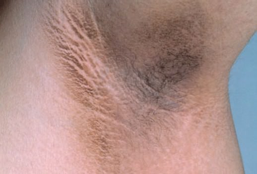 Acanthosis nigricans: How can you avoid these obesity-related spots on your skin?